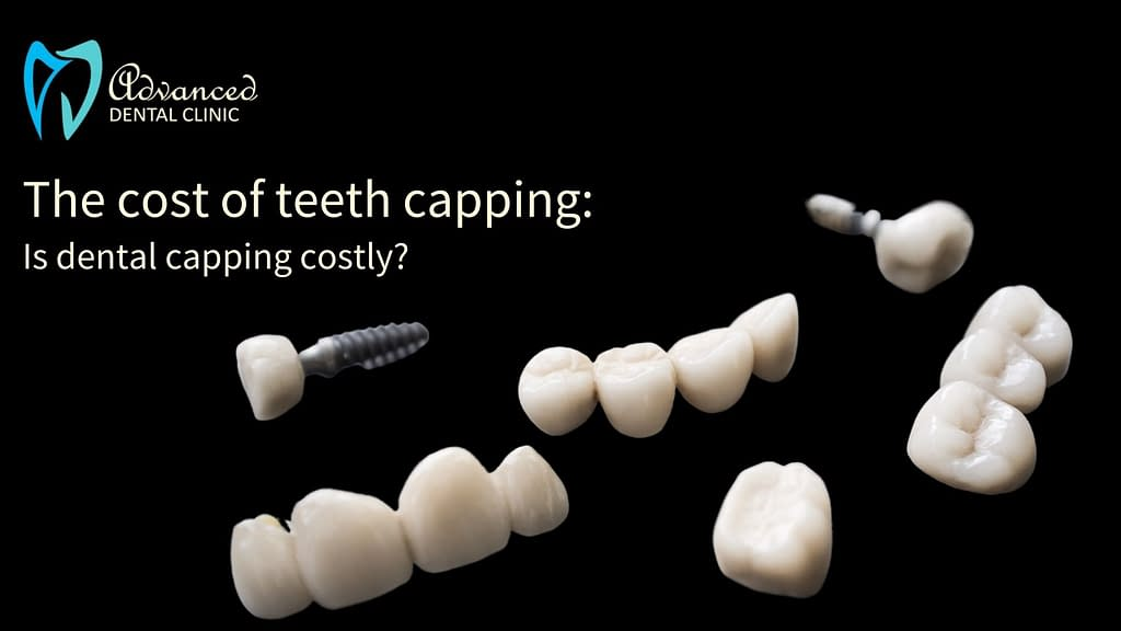 Cost of Teeth Capping: The Dental Caps Cost to Value Relation